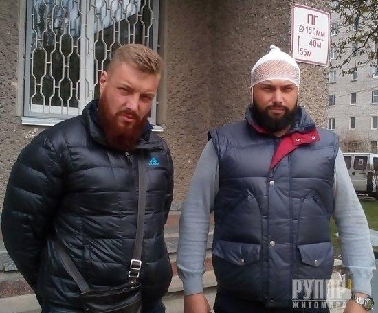 На Житомирщині невідомі побили укропівця, котрий вимагав покарання для місцевих бандитів