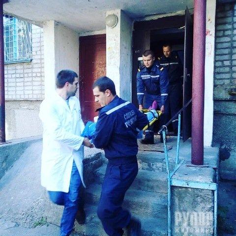 На Житомирщині рятували 82-річну пенсіонерку, яка травмувалася вдома